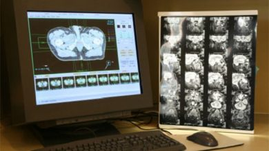 Photo of Intel, Penn Medicine Launch Federated Learning Model For Brain Tumors